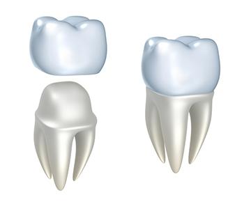 Couronne dentaire à l'étranger