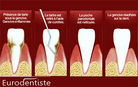 curetage dentaire à l'étranger