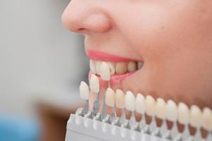 facette dentaire à l'étranger
