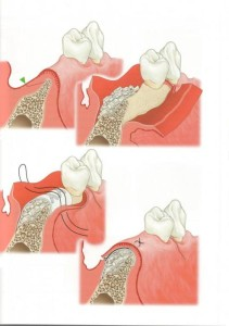 greffe osseuse dentaire