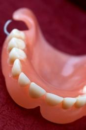 prothèse dentaire à l'étranger