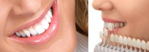 prix couronne dentaire à l'étranger