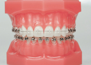 appareil orthodontique à l\'étranger