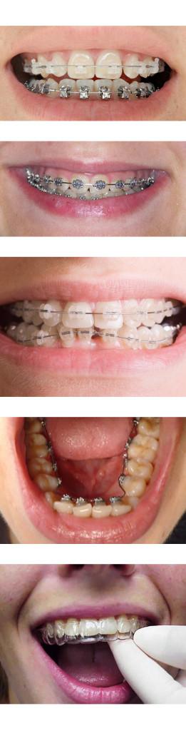 prix appareil orthodontique
