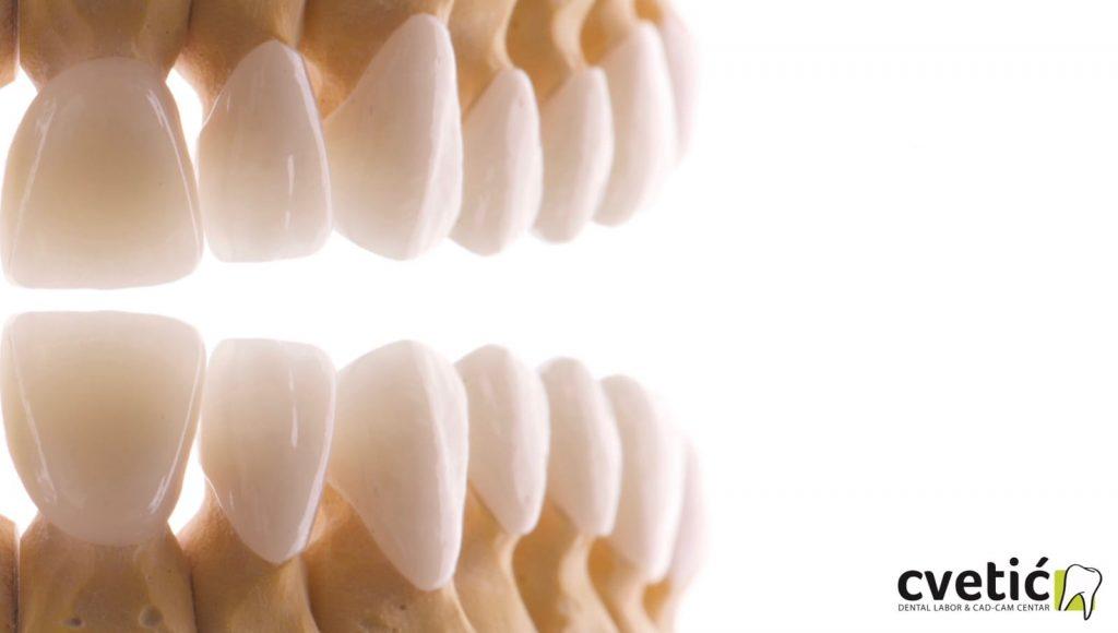la couronne dentaire